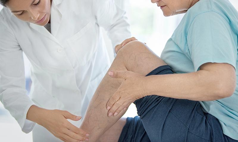 Ärztin untersucht Venen am Bein einer Patientin